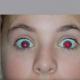 red-eye-removal